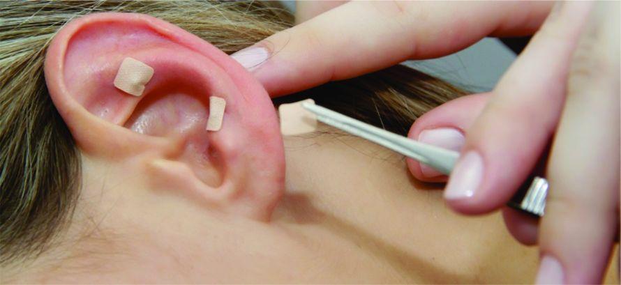 acupuntura-auricular-foto