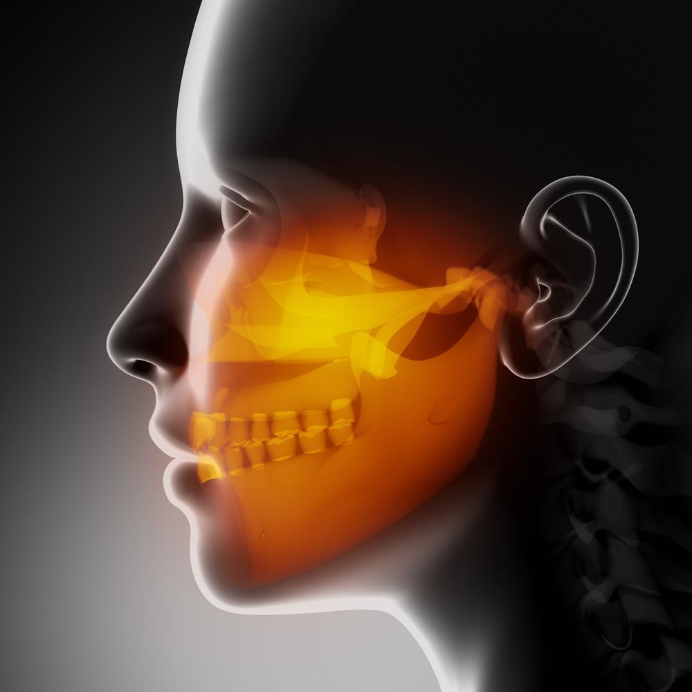 Eficiência da Acupuntura no tratamento das disfunções temporomandibulares e sintomasassociados