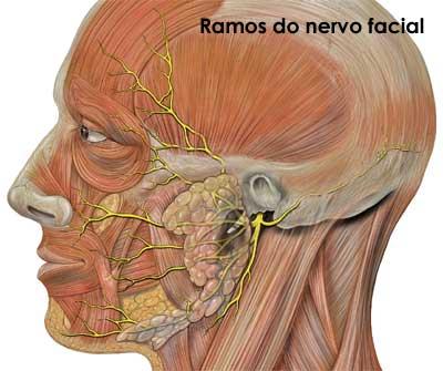 paralisia-facial-01