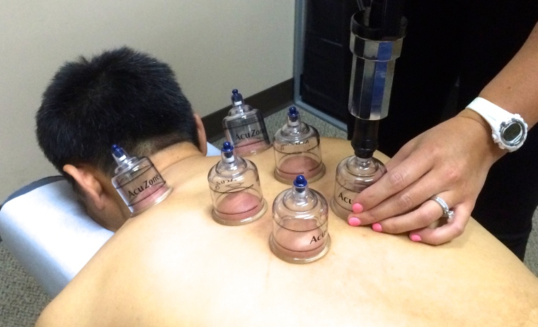cupping (2)