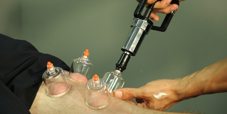 cupping (3)