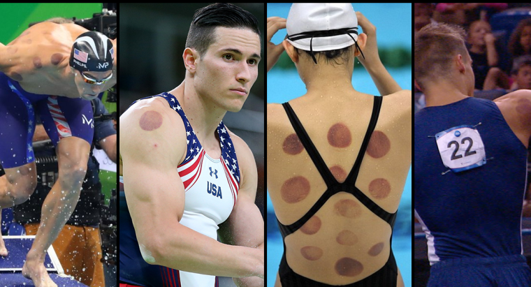 olympic-cupping-1080x623