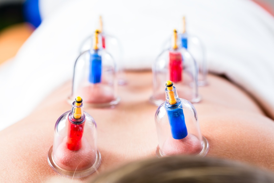 Alternative practitioner cupping woman