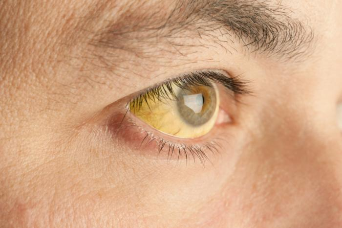 eye-of-man-with-jaundice