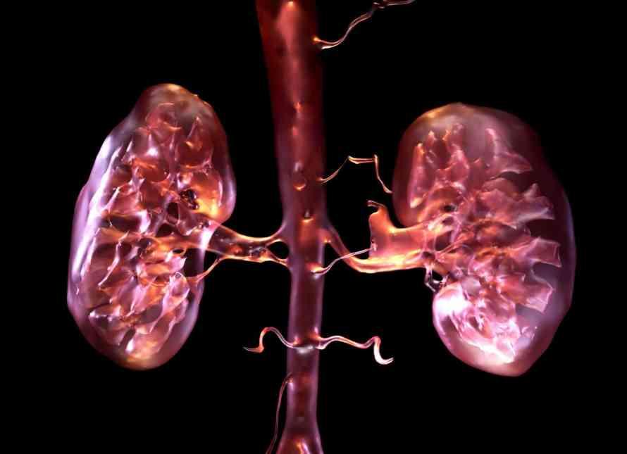 Kidney1