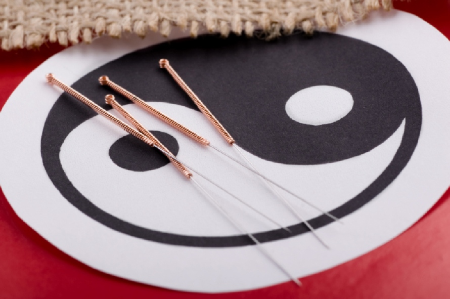 Acupuncture-needles