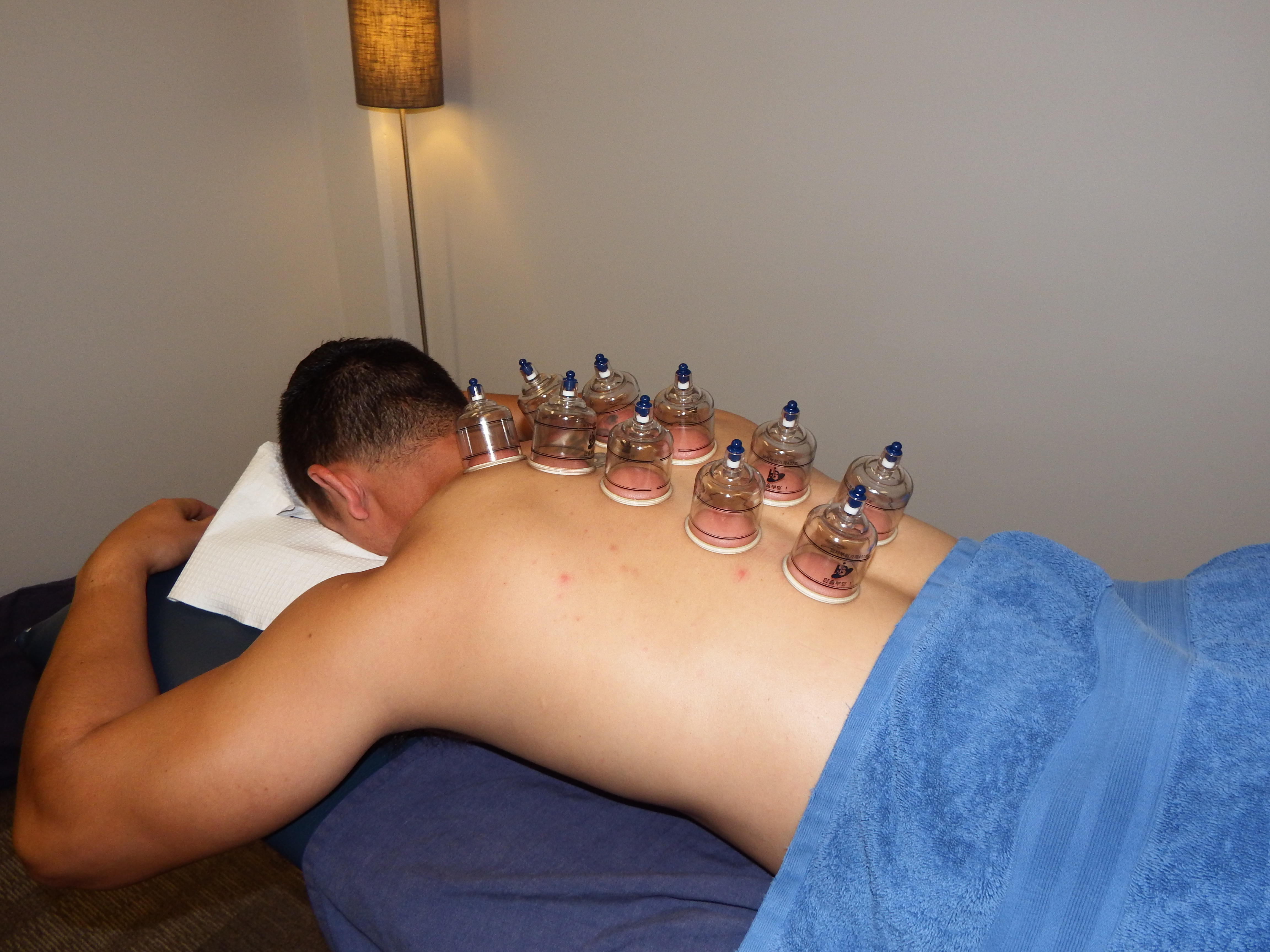 CUPPING-on