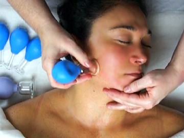 Facial-Cupping-Rejuvenation
