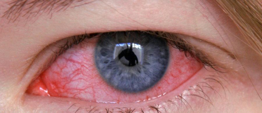 O olho esquerdo inchaço sobre