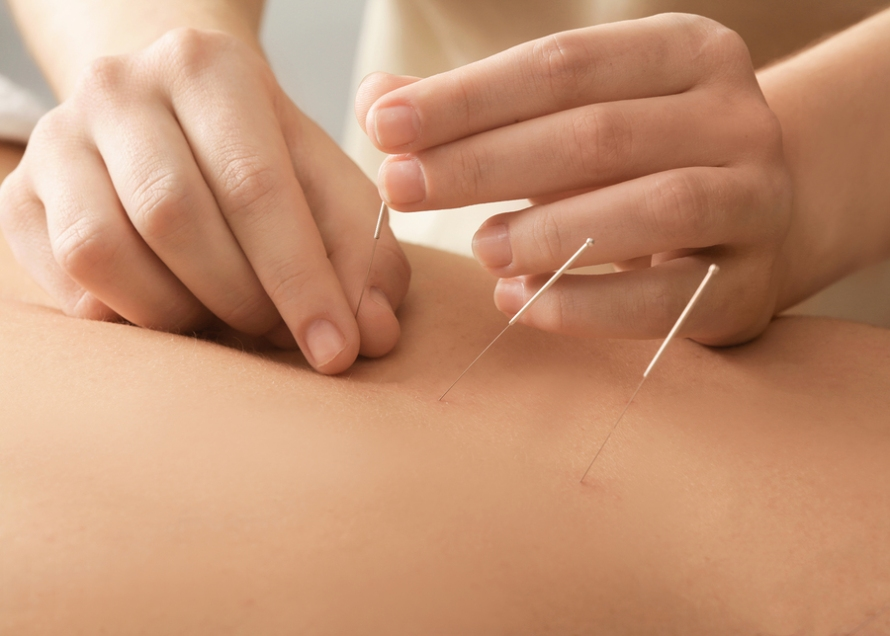 bigstock-Young-man-getting-acupuncture-181647451