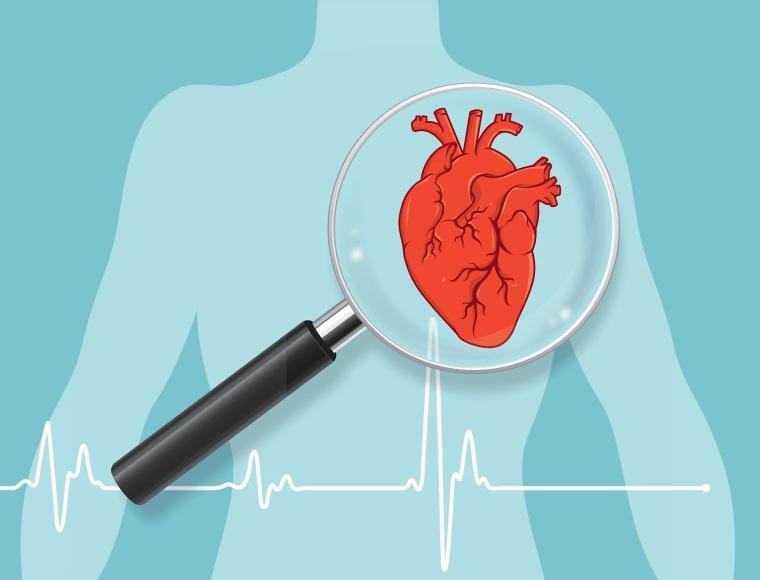 Heart checkup